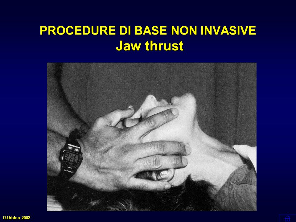 PROCEDURE DI BASE NON INVASIVE Jaw thrust R.Urbino 2002