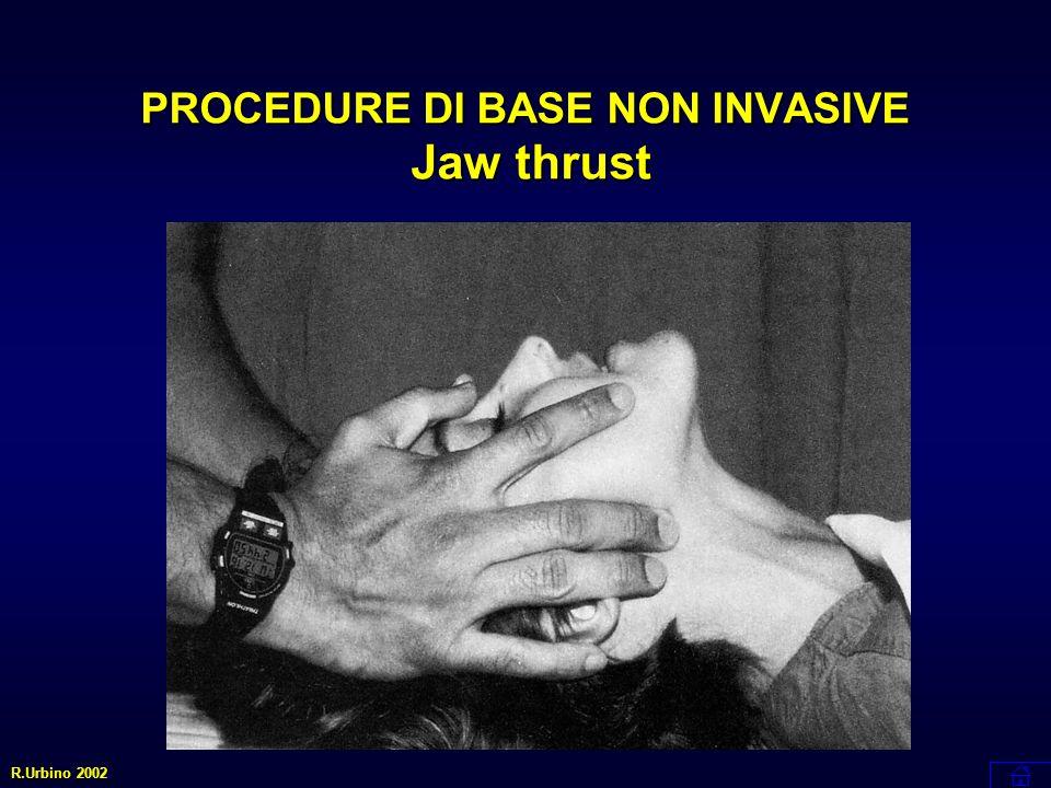 Procedure definitive cruente R.Urbino 2002 Cricotirotomia Chirurgica Intubazione per via retrograda Airway