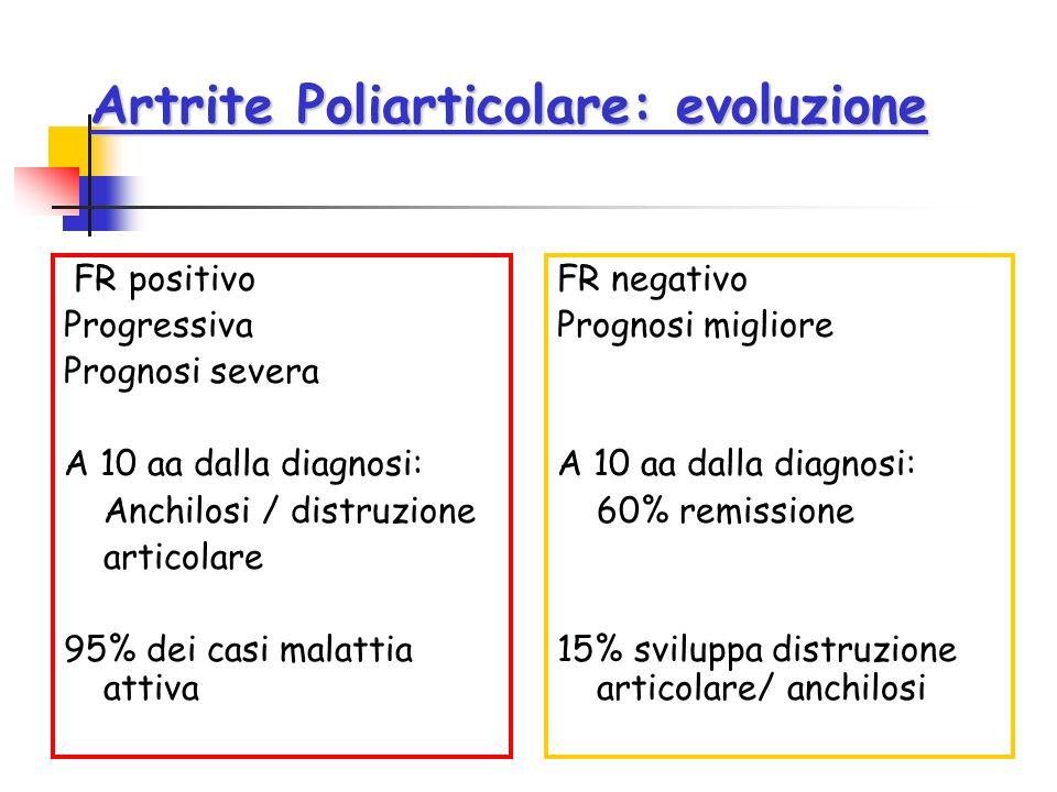 Artrite Poliarticolare: evoluzione FR positivo Progressiva Prognosi severa A 10 aa dalla diagnosi: Anchilosi / distruzione articolare 95% dei casi mal