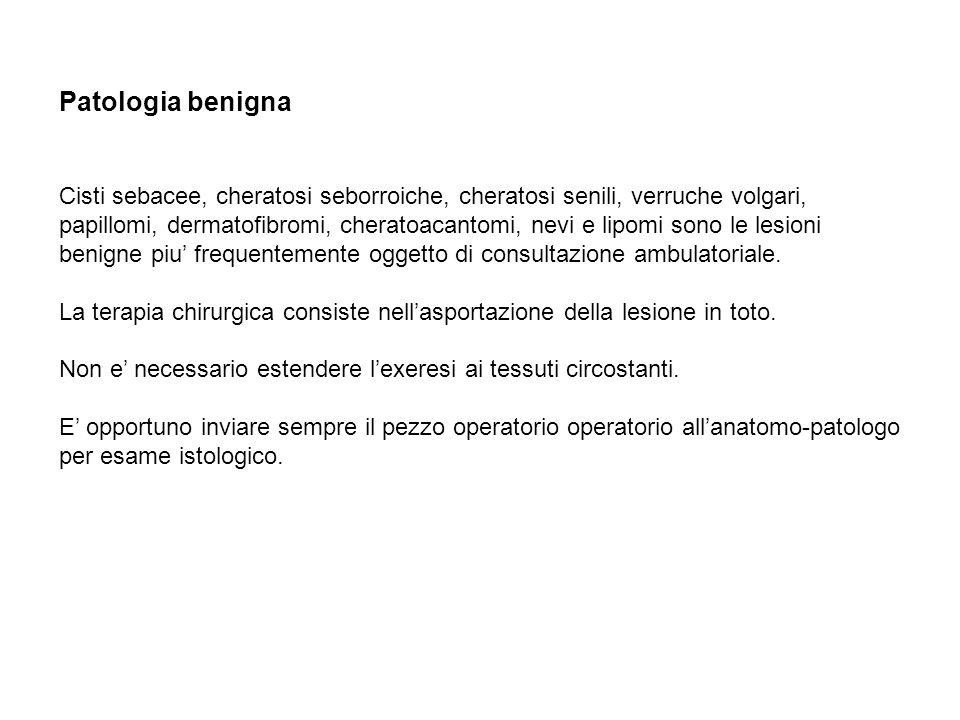 Patologia maligna Il carcinoma basocellulare.
