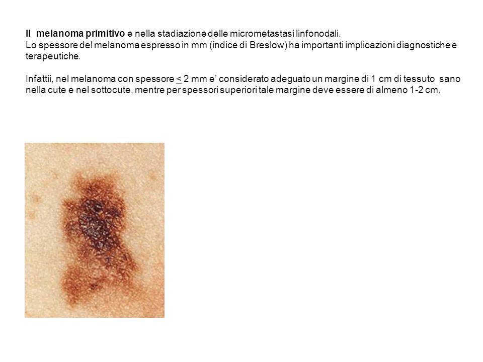 Il melanoma primitivo e nella stadiazione delle micrometastasi linfonodali. Lo spessore del melanoma espresso in mm (indice di Breslow) ha importanti