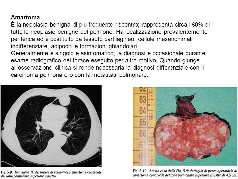 metastasi polmonari da carcinoma mammario sintomi