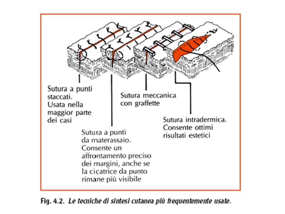 Deiscenza È lapertura spontanea della ferita determinata da cedimento parziale o totale della sutura o della cicatrice recente.