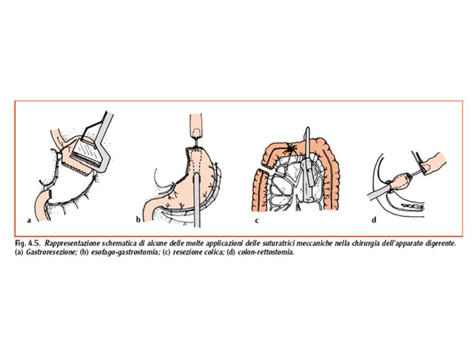 Raccolta sierosa È la raccolta di liquido sterile nella ferita, contenente in diverse proporzioni, a seconda dei casi, siero, linfa, liquido trasudato, tessuto adiposo in necrosi, tracce di sangue.