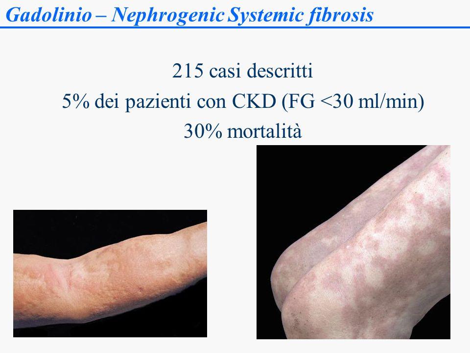 Gadolinio – Nephrogenic Systemic fibrosis 215 casi descritti 5% dei pazienti con CKD (FG <30 ml/min) 30% mortalità