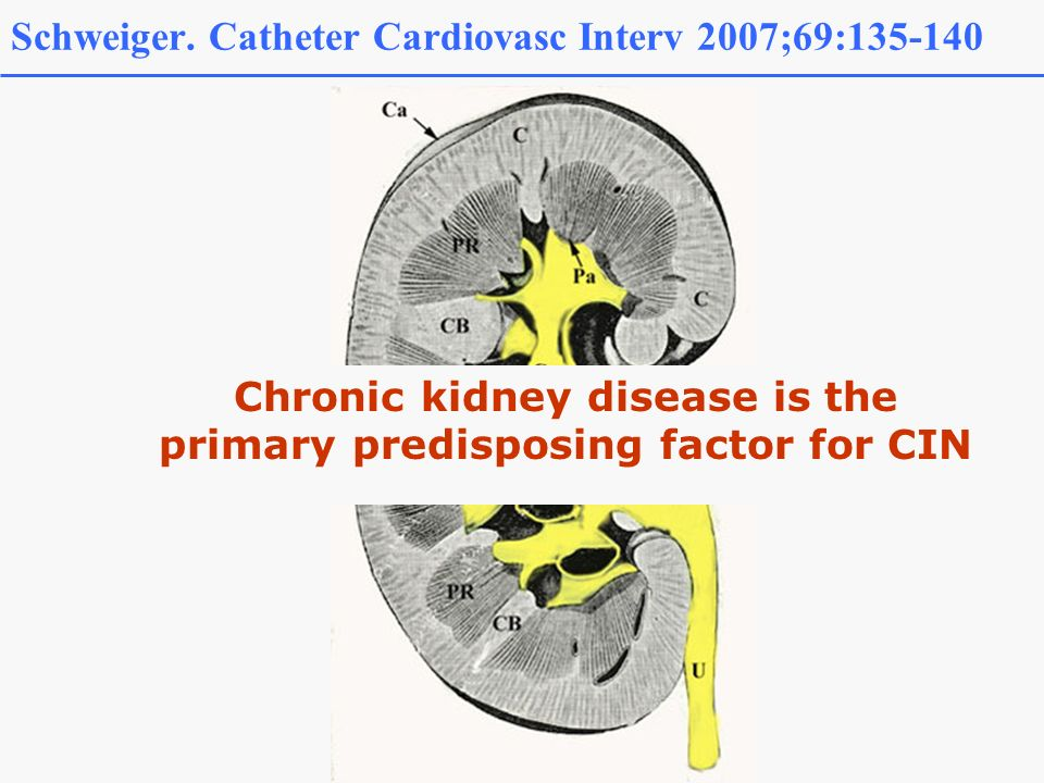 Schweiger. Catheter Cardiovasc Interv 2007;69:135-140 Chronic kidney disease is the primary predisposing factor for CIN