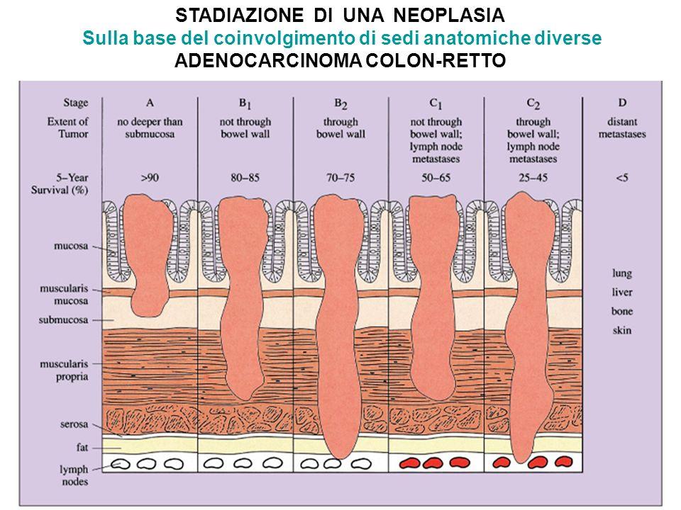 STADIAZIONE DI UNA NEOPLASIA Sulla base del coinvolgimento di sedi anatomiche diverse ADENOCARCINOMA COLON-RETTO
