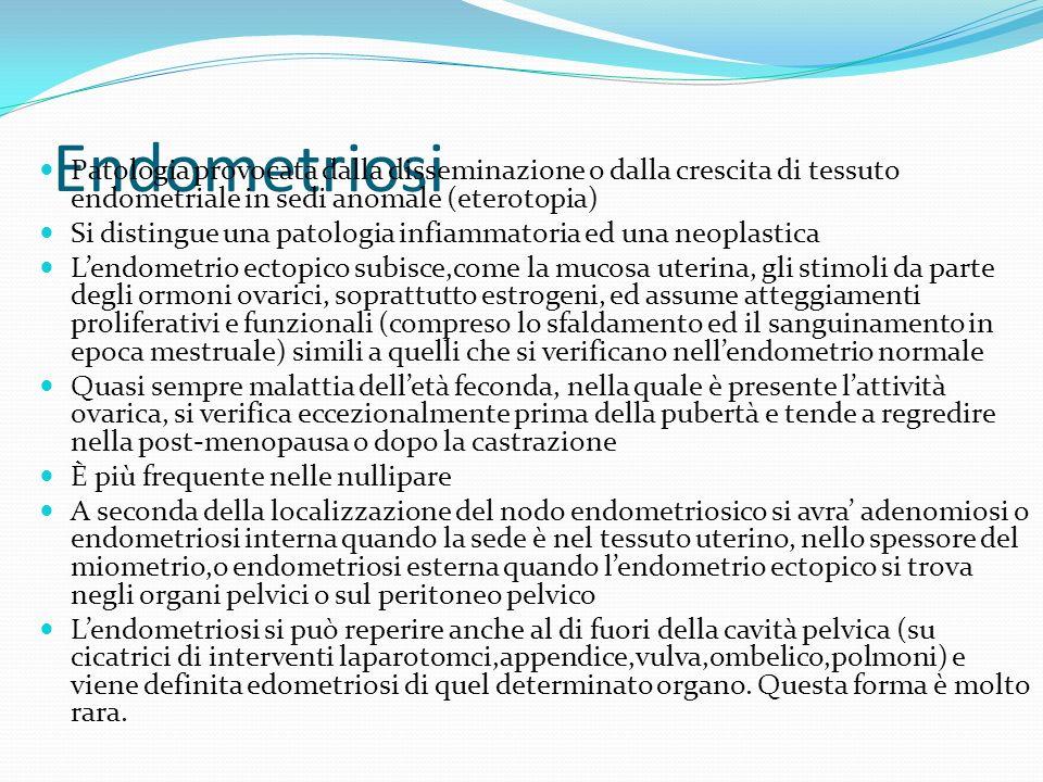Endometriosi Patologia provocata dalla disseminazione o dalla crescita di tessuto endometriale in sedi anomale (eterotopia) Si distingue una patologia