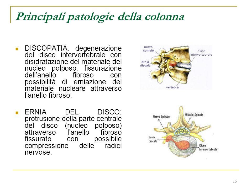 15 Principali patologie della colonna DISCOPATIA: degenerazione del disco intervertebrale con disidratazione del materiale del nucleo polposo, fissura