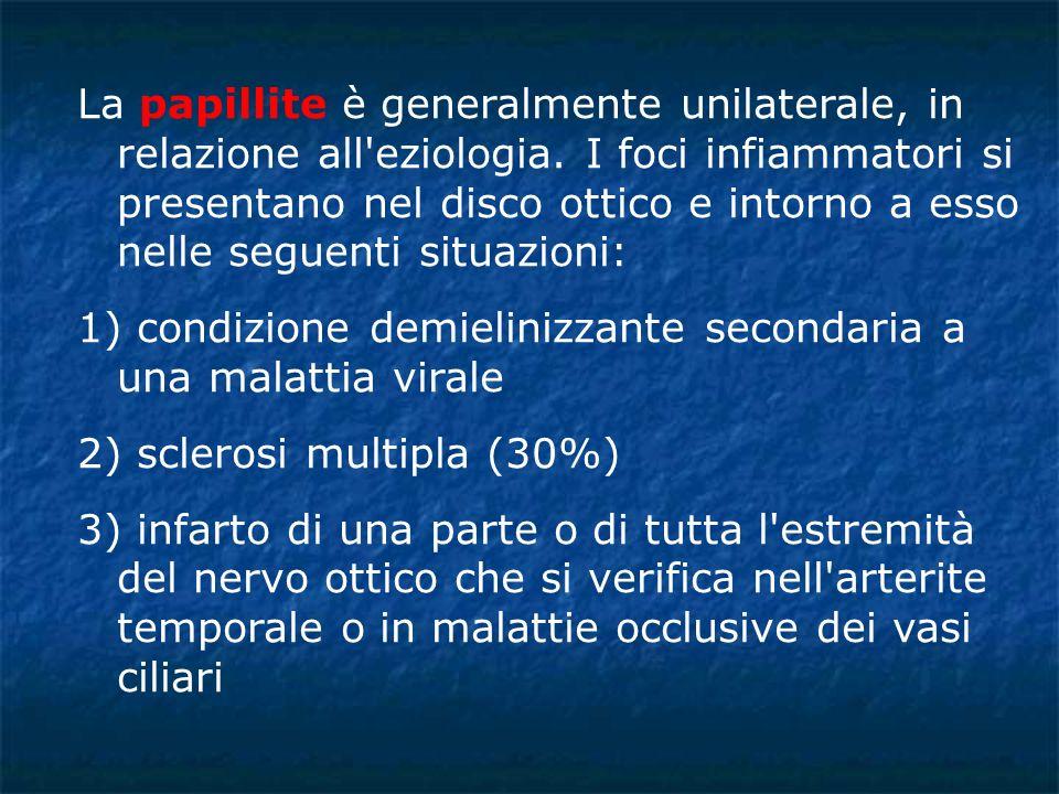 La papillite è generalmente unilaterale, in relazione all'eziologia. I foci infiammatori si presentano nel disco ottico e intorno a esso nelle seguent