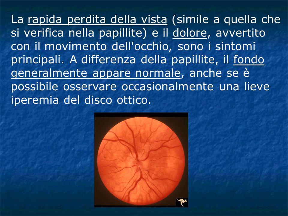 La rapida perdita della vista (simile a quella che si verifica nella papillite) e il dolore, avvertito con il movimento dell'occhio, sono i sintomi pr