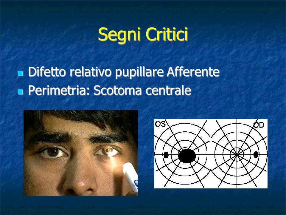 Segni Critici Difetto relativo pupillare Afferente Difetto relativo pupillare Afferente Perimetria: Scotoma centrale Perimetria: Scotoma centrale
