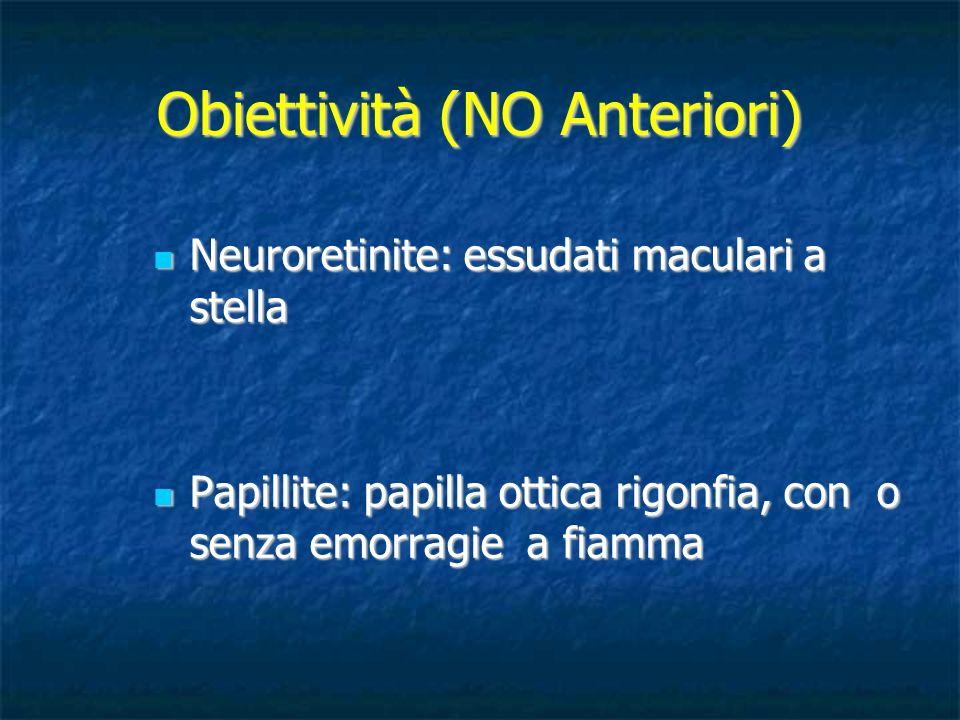 Obiettività (NO Anteriori) Neuroretinite: essudati maculari a stella Neuroretinite: essudati maculari a stella Papillite: papilla ottica rigonfia, con