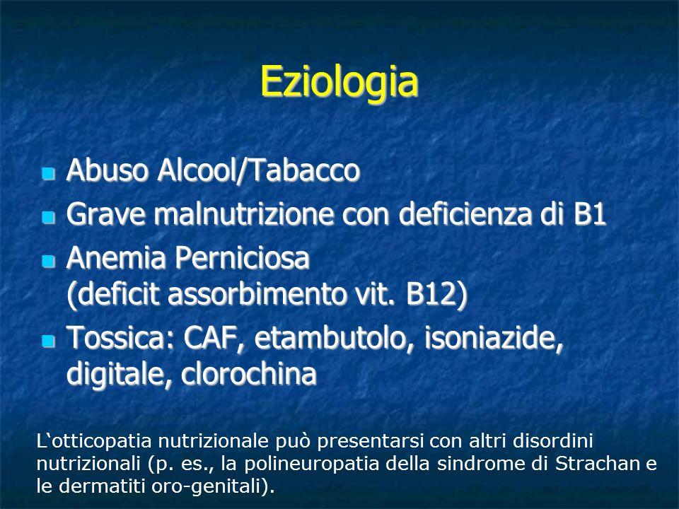 Eziologia Abuso Alcool/Tabacco Abuso Alcool/Tabacco Grave malnutrizione con deficienza di B1 Grave malnutrizione con deficienza di B1 Anemia Pernicios