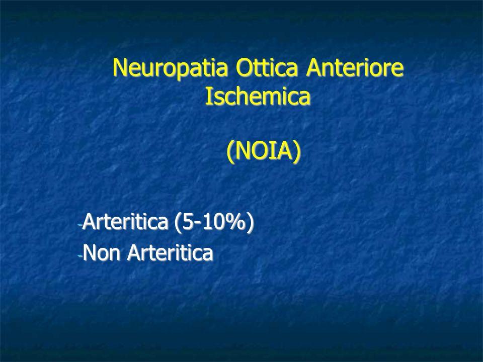 Neuropatia Ottica Anteriore Ischemica - Arteritica (5-10%) - Non Arteritica (NOIA)