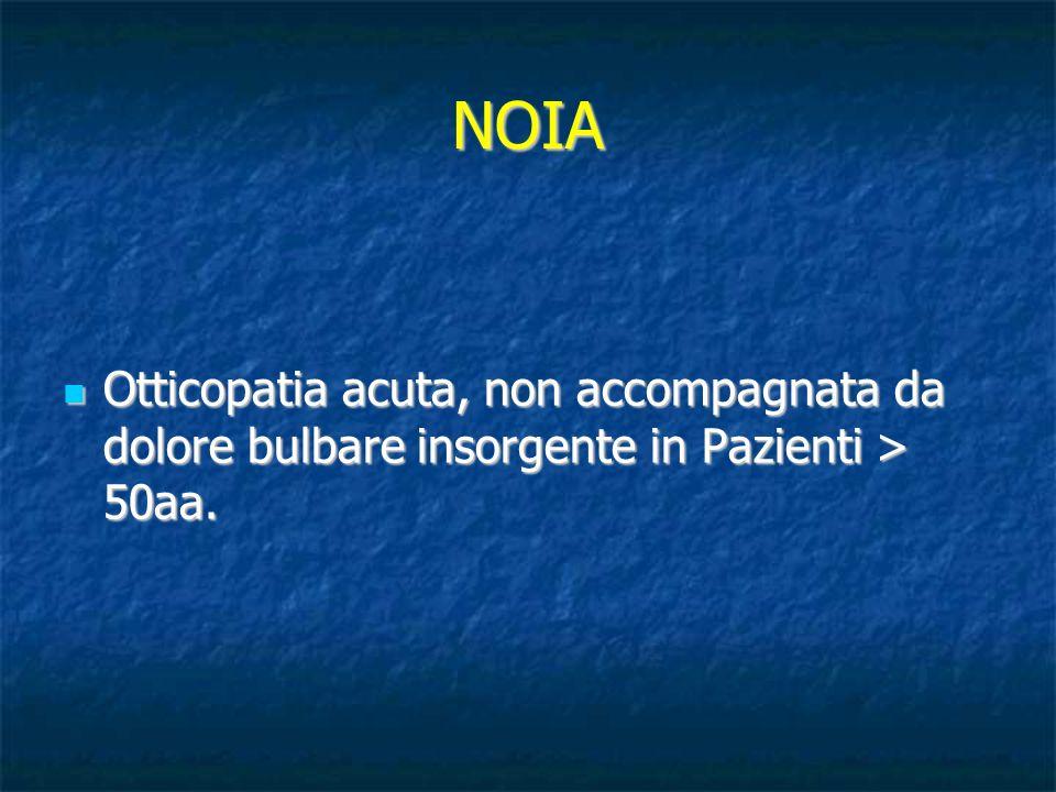 NOIA Otticopatia acuta, non accompagnata da dolore bulbare insorgente in Pazienti > 50aa. Otticopatia acuta, non accompagnata da dolore bulbare insorg