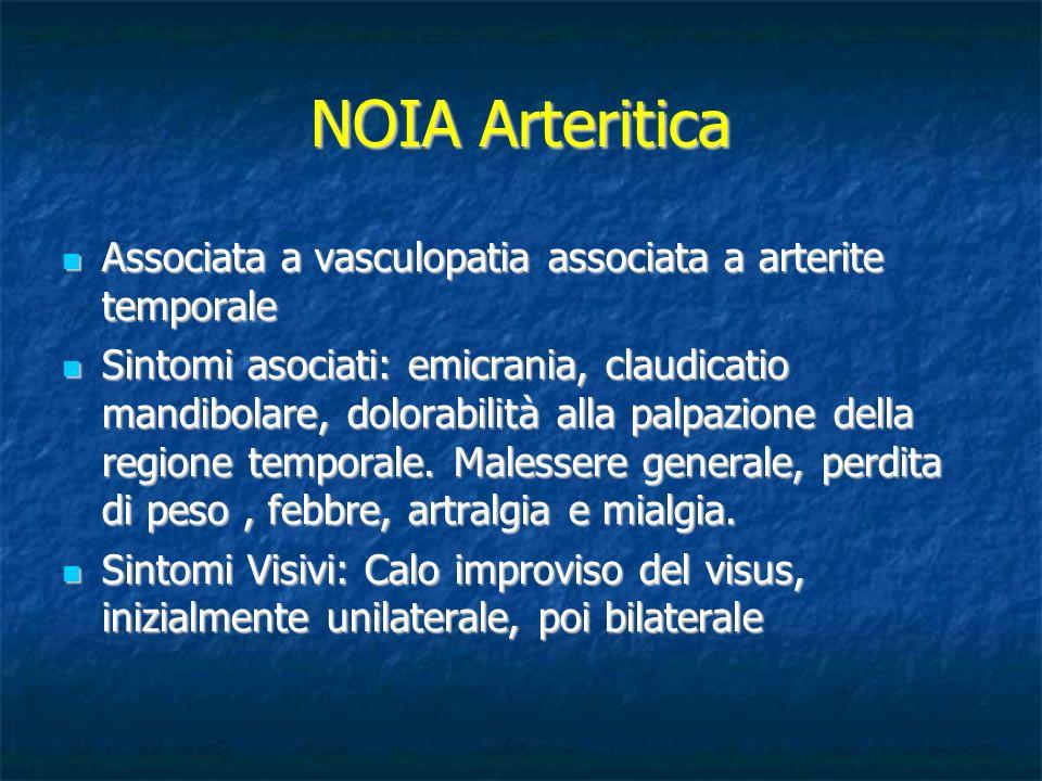NOIA Arteritica Associata a vasculopatia associata a arterite temporale Associata a vasculopatia associata a arterite temporale Sintomi asociati: emic