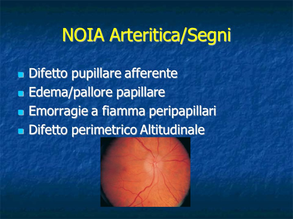 NOIA Arteritica/Segni Difetto pupillare afferente Difetto pupillare afferente Edema/pallore papillare Edema/pallore papillare Emorragie a fiamma perip