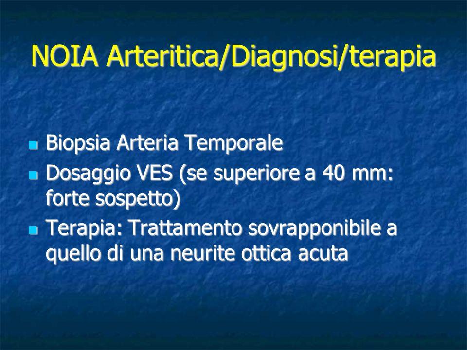 NOIA Arteritica/Diagnosi/terapia Biopsia Arteria Temporale Biopsia Arteria Temporale Dosaggio VES (se superiore a 40 mm: forte sospetto) Dosaggio VES