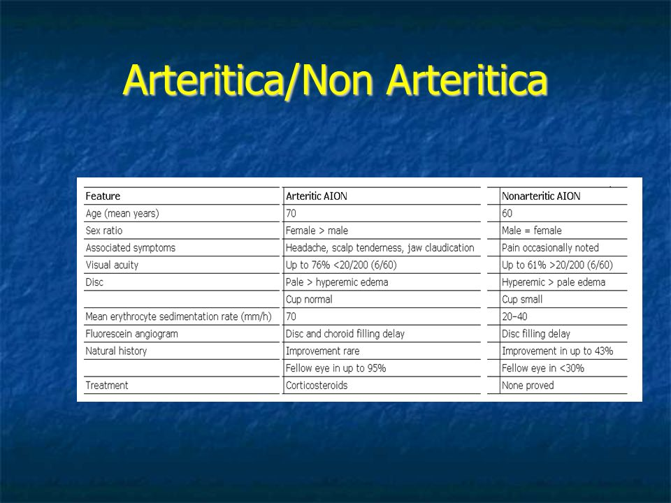 Arteritica/Non Arteritica