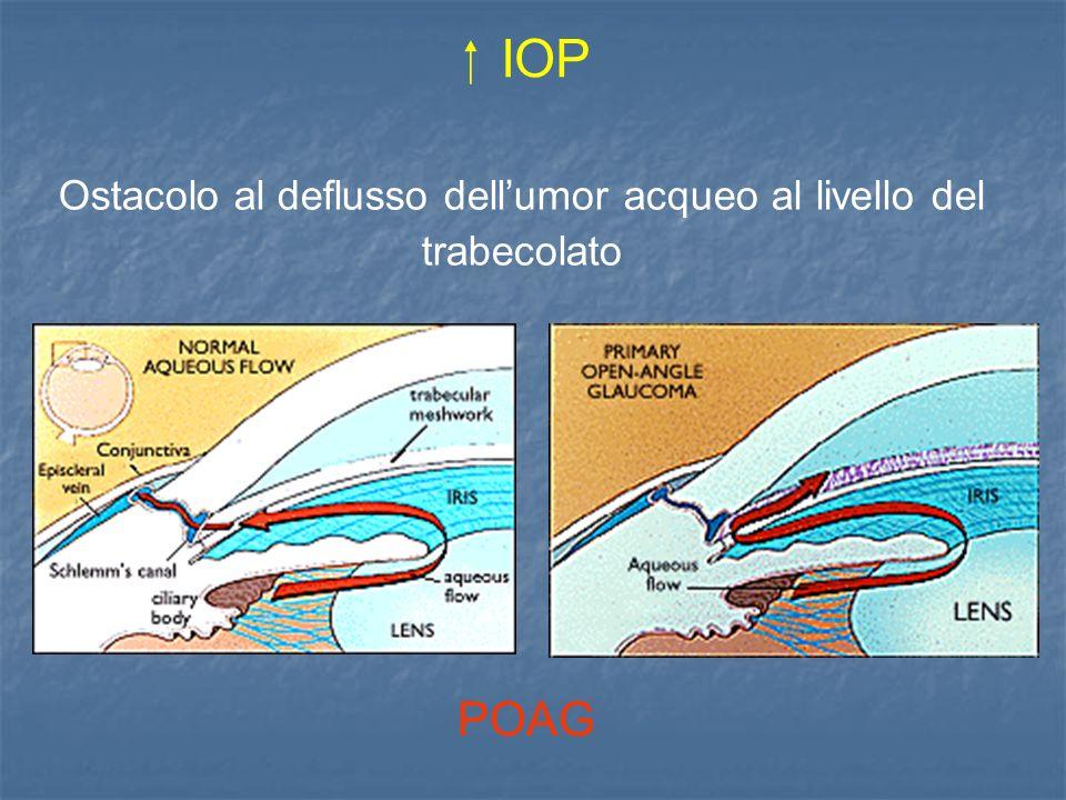 IOP Ostacolo al deflusso dellumor acqueo al livello del trabecolato POAG