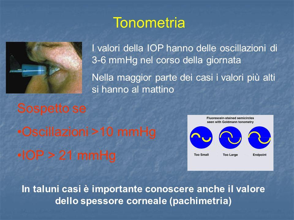 Tonometria I valori della IOP hanno delle oscillazioni di 3-6 mmHg nel corso della giornata Nella maggior parte dei casi i valori più alti si hanno al