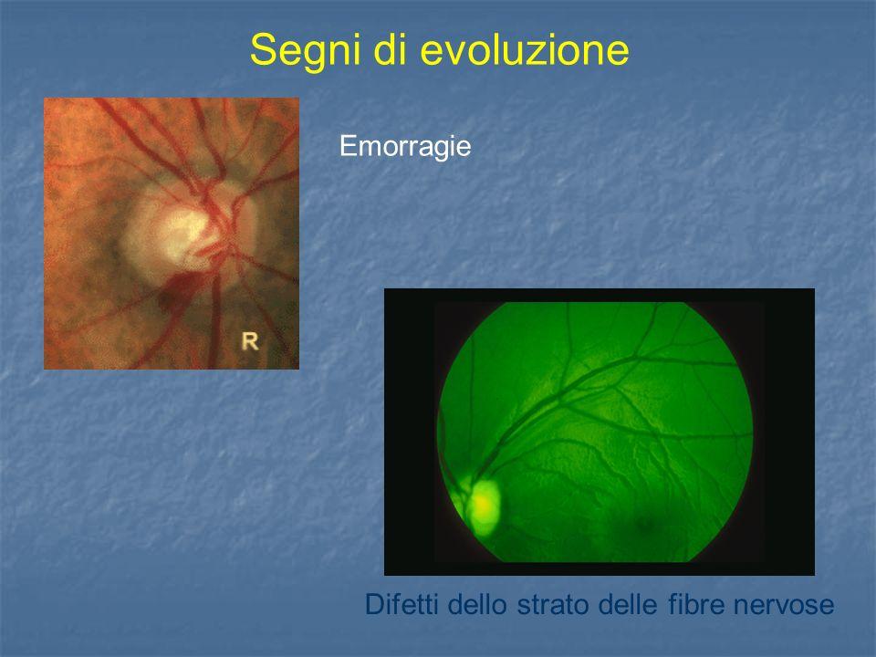 Segni di evoluzione Emorragie Difetti dello strato delle fibre nervose
