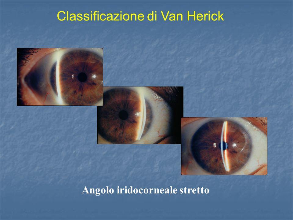 Angolo iridocorneale stretto Classificazione di Van Herick