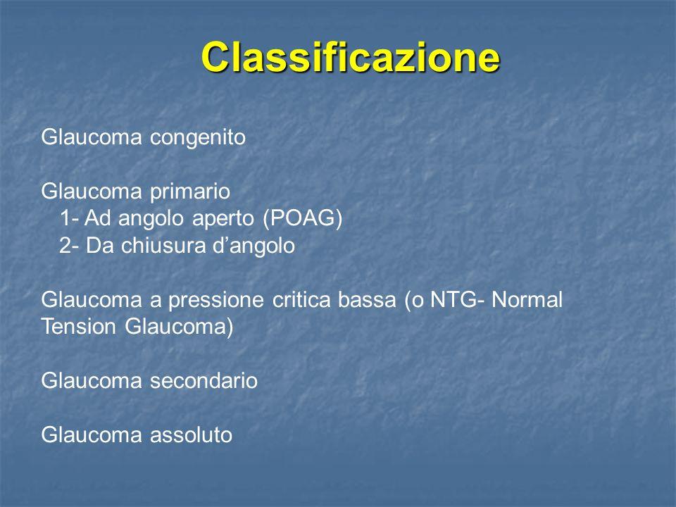 Glaucoma da chiusura dangolo - Obiettività oculare - Congiuntiva iperemica e chemotica Edema corneale Midriasi fissa Attacco acuto Forma cronica E presente solo lipertono oculare