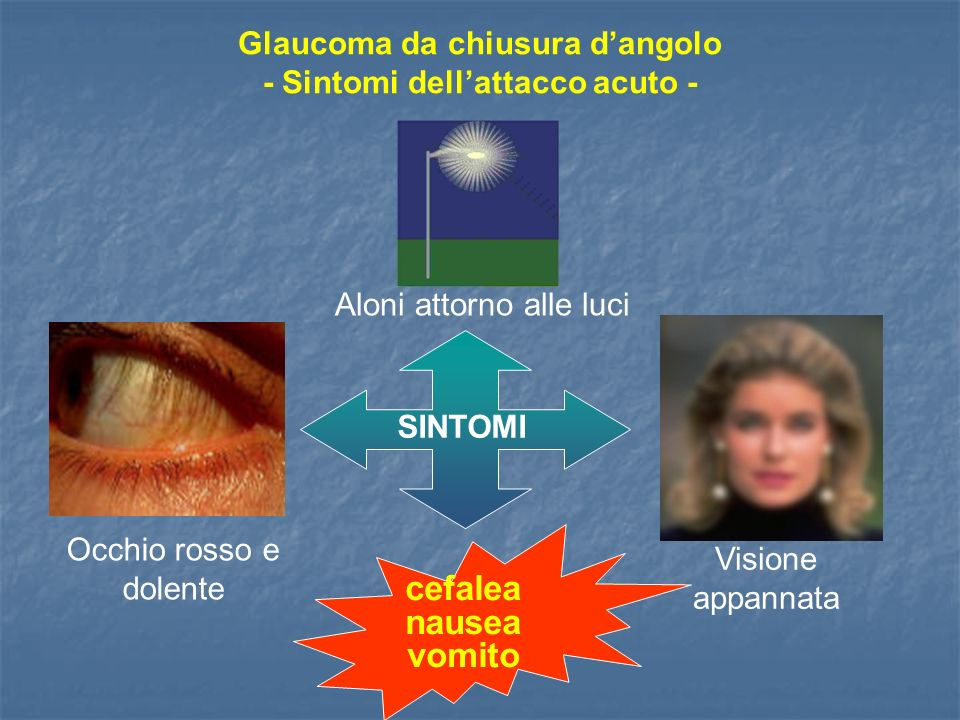 Occhio rosso e dolente Aloni attorno alle luci Visione appannata cefalea nausea vomito SINTOMI Glaucoma da chiusura dangolo - Sintomi dellattacco acut