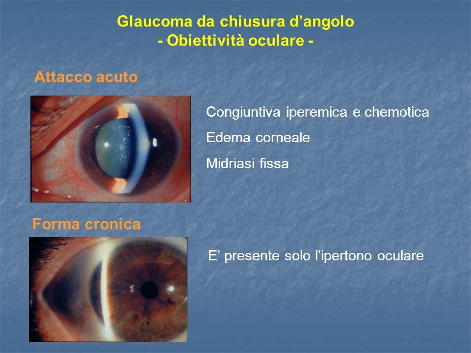 Glaucoma da chiusura dangolo - Obiettività oculare - Congiuntiva iperemica e chemotica Edema corneale Midriasi fissa Attacco acuto Forma cronica E pre