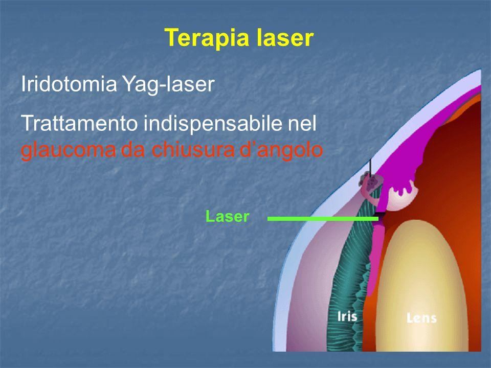 Terapia laser Iridotomia Yag-laser Trattamento indispensabile nel glaucoma da chiusura dangolo Laser