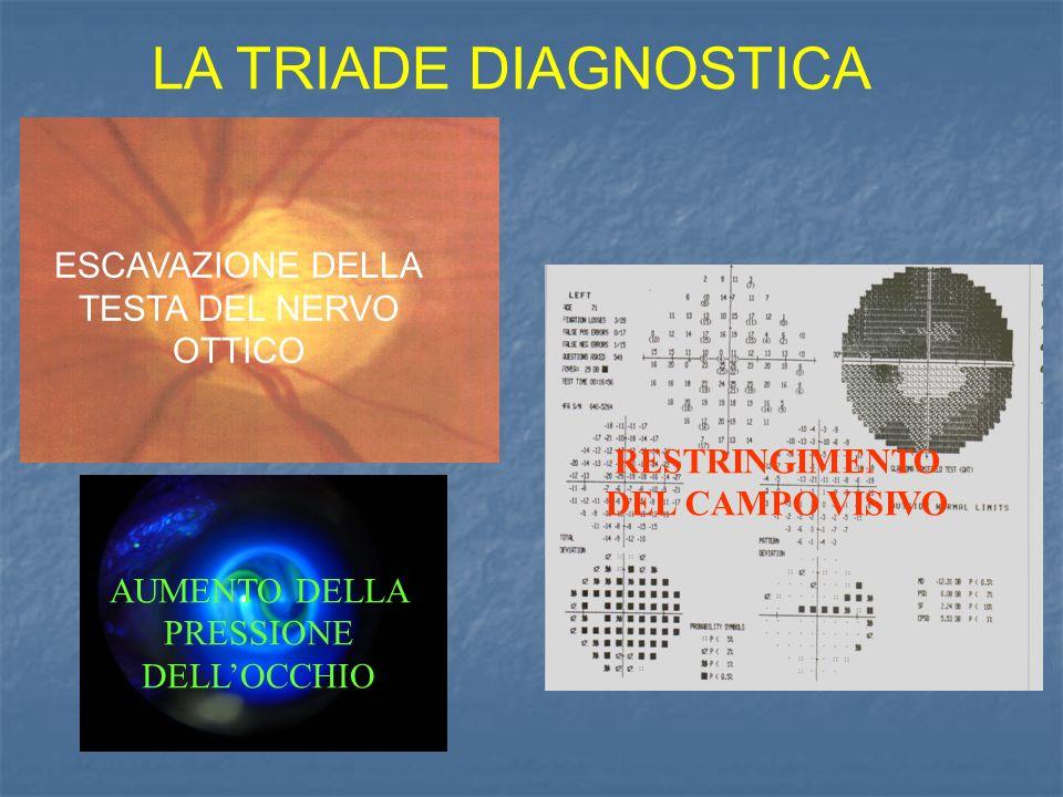 LA TRIADE DIAGNOSTICA RESTRINGIMENTO DEL CAMPO VISIVO ESCAVAZIONE DELLA TESTA DEL NERVO OTTICO AUMENTO DELLA PRESSIONE DELLOCCHIO