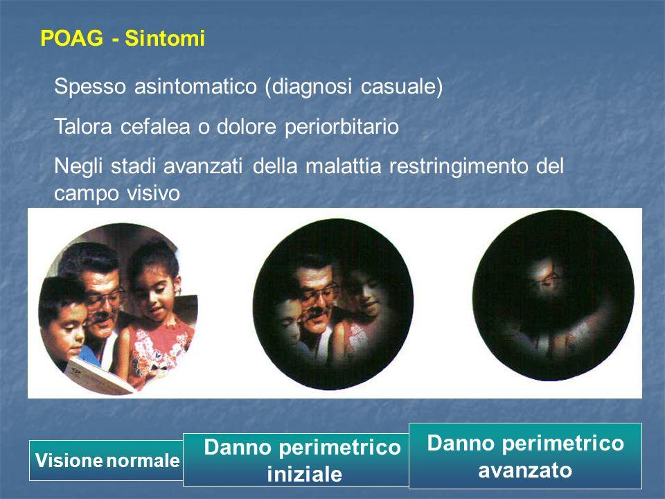 POAG - Sintomi Spesso asintomatico (diagnosi casuale) Talora cefalea o dolore periorbitario Negli stadi avanzati della malattia restringimento del cam