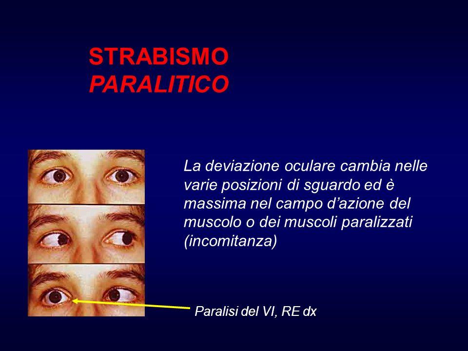 STRABISMO PARALITICO La deviazione oculare cambia nelle varie posizioni di sguardo ed è massima nel campo dazione del muscolo o dei muscoli paralizzati (incomitanza) Paralisi del VI, RE dx