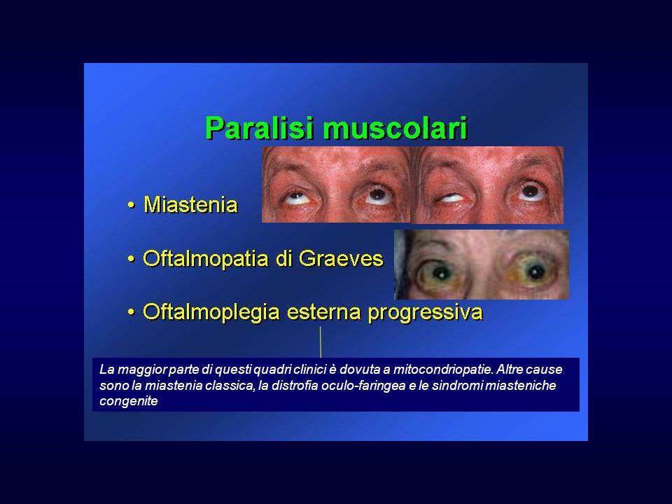 La maggior parte di questi quadri clinici è dovuta a mitocondriopatie. Altre cause sono la miastenia classica, la distrofia oculo-faringea e le sindro