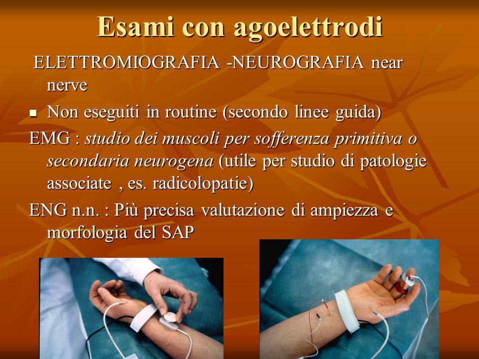 Esami con agoelettrodi ELETTROMIOGRAFIA -NEUROGRAFIA near nerve ELETTROMIOGRAFIA -NEUROGRAFIA near nerve Non eseguiti in routine (secondo linee guida)