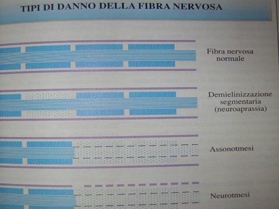 Espressività della neuropatia compressiva DANNOANATOMO-PATOLOGICANEURO-FISIOLOGICAELETTRO-FISIOLOGICAFASECLINICA LieveMielinopatiaNeuroaprassiaRallentamentodella conduzione nervosa Irritativa Medio Mielinopatia + ParzialeAssonopatia Neuroaprassia + ParzialeAssonotmesi Rallentamento + decremento ampiezza Deficitaria GraveAssonopatiaAssonotmesi Perdita del segnale Paralitica