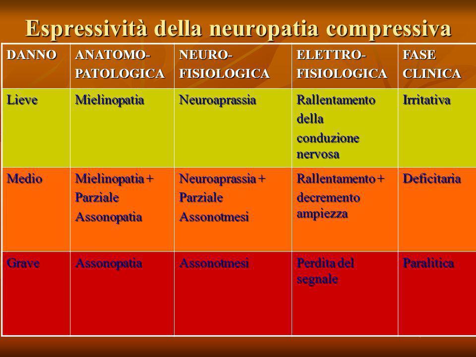 Espressività della neuropatia compressiva DANNOANATOMO-PATOLOGICANEURO-FISIOLOGICAELETTRO-FISIOLOGICAFASECLINICA LieveMielinopatiaNeuroaprassiaRallent