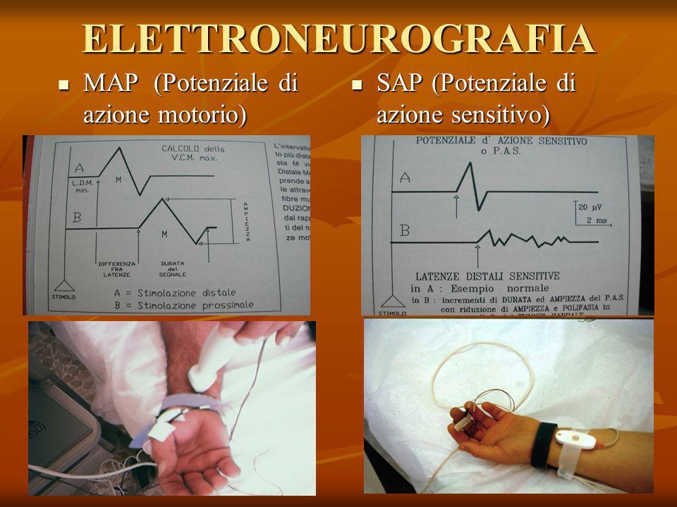 ELETTRONEUROGRAFIA MAP (Potenziale di azione motorio) MAP (Potenziale di azione motorio) SAP (Potenziale di azione sensitivo) SAP (Potenziale di azion
