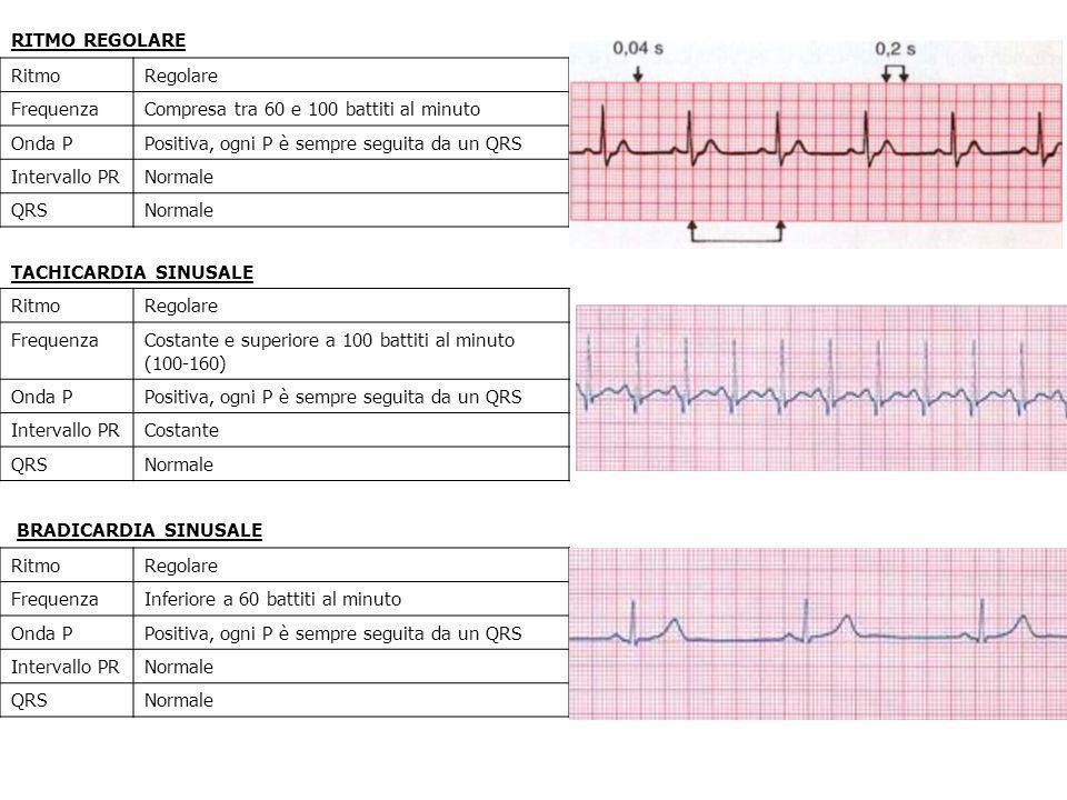 RITMO REGOLARE RitmoRegolare FrequenzaCompresa tra 60 e 100 battiti al minuto Onda PPositiva, ogni P è sempre seguita da un QRS Intervallo PRNormale Q