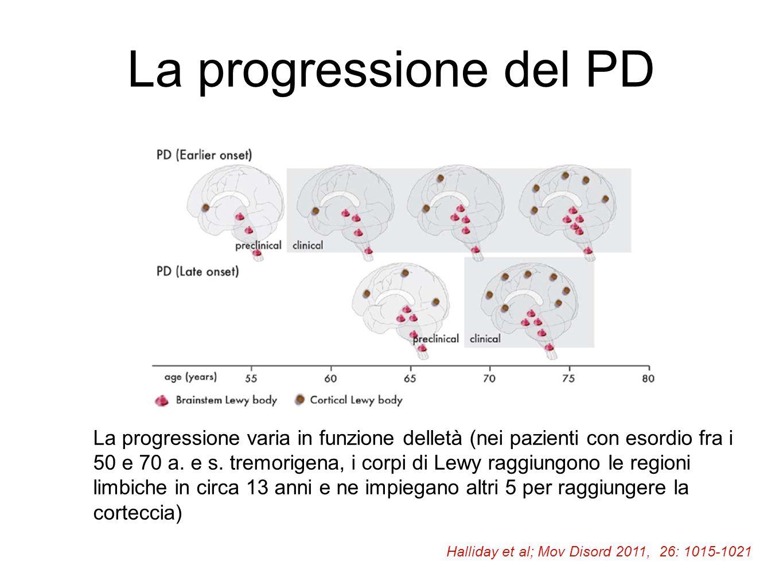 La progressione del PD La progressione varia in funzione delletà (nei pazienti con esordio fra i 50 e 70 a. e s. tremorigena, i corpi di Lewy raggiung