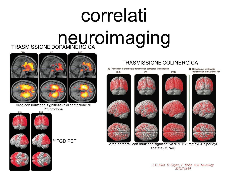 correlati neuroimaging J. C. Klein, C. Eggers, E. Kalbe, et al. Neurology 2010;74;885 Aree con riduzione significativa di captazione di 18 fuorodopa T