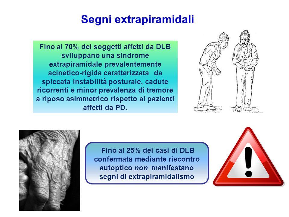 Segni extrapiramidali Fino al 70% dei soggetti affetti da DLB sviluppano una sindrome extrapiramidale prevalentemente acinetico-rigida caratterizzata