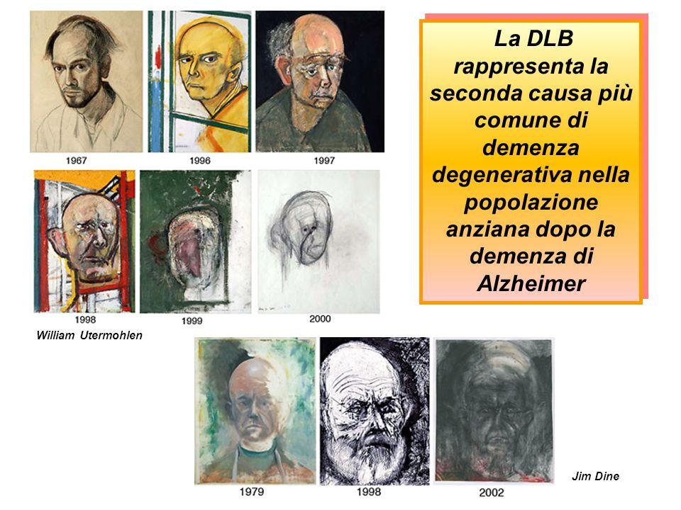 La DLB rappresenta la seconda causa più comune di demenza degenerativa nella popolazione anziana dopo la demenza di Alzheimer Jim Dine William Utermoh