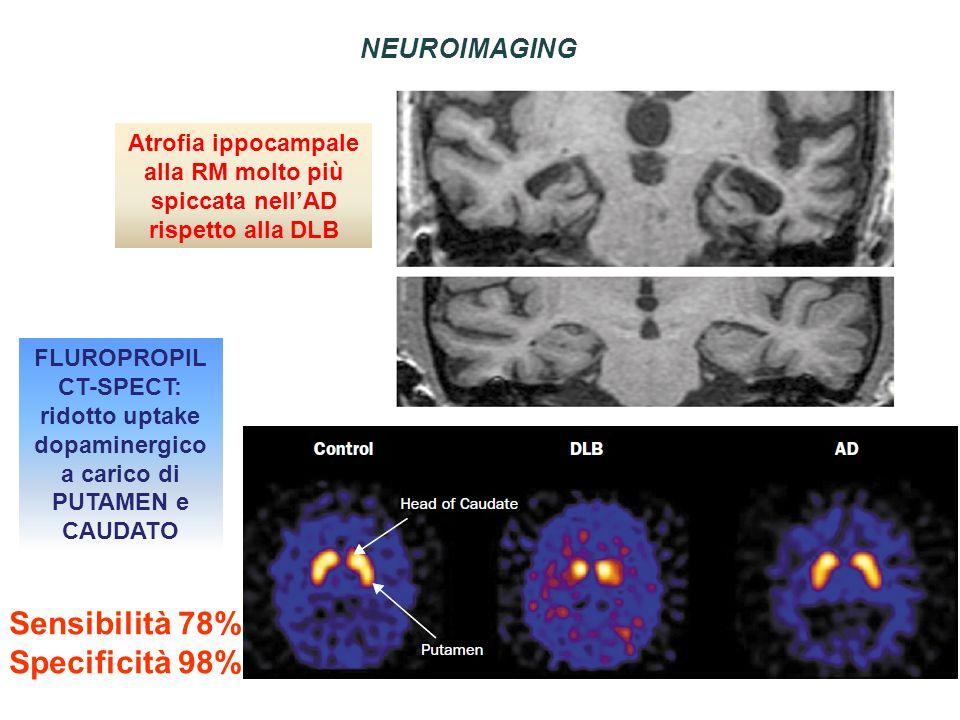 Atrofia ippocampale alla RM molto più spiccata nellAD rispetto alla DLB FLUROPROPIL CT-SPECT: ridotto uptake dopaminergico a carico di PUTAMEN e CAUDA
