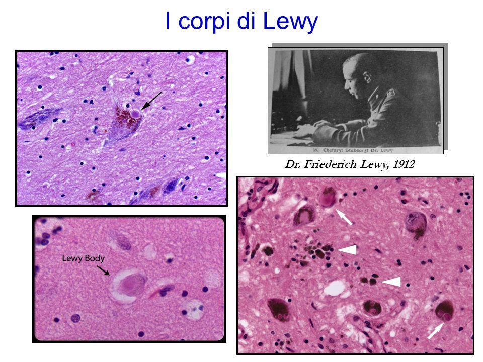 La formazione dei corpi di Lewy: possibili meccanismi Erikersen et al., Caught in the act: alfa sinuclein is the culprit in Parkinsons Disease.