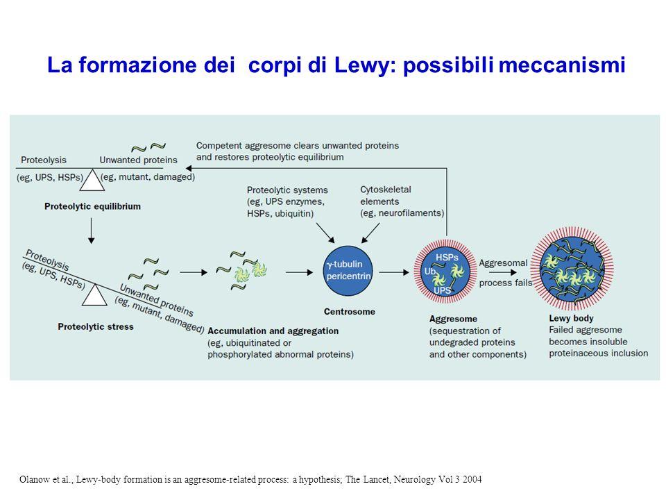 Le sinucleinopatie Malattia di Parkinson Demenza con corpi di Lewy Complesso Parkinson-Demenza
