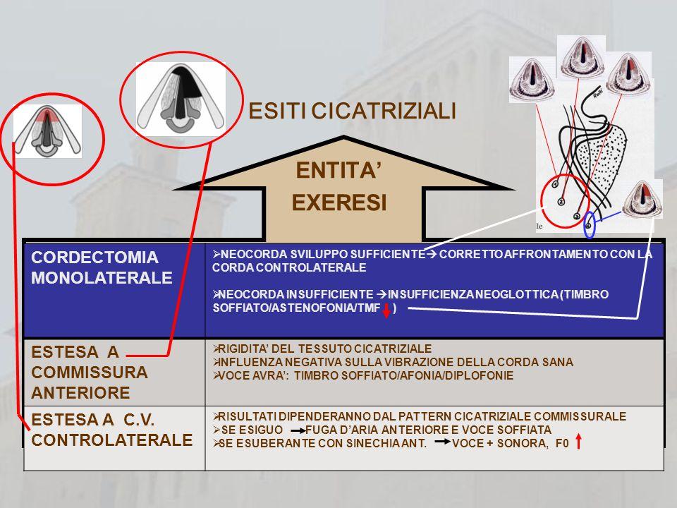 PROBLEMA PRINCIPALE:DEFICIT AFFRONTAMENTO GLOTTICO MECCANISMI DI COMPENSO IPERADDUZIONE CORDA SANA-NEOCORDA COMPENSO CORDA SANA- FALSA CORDA CONTROLATERALE ATTEGGIAMENTO IPERCINETICO VOCAL TRACT MECCANISMI DI COMPENSO ESERCITATI SCORRETTAMENTE HABITUS IPERCINETICO FONAZIONE SOPRAGLOTTICA TIMBRO RAUCO(PREVALENZA DELLE COMPONENTI APERIODICHE(RUMORE) RIABILITAZIONE LOGOPEDICA PRECOCE USO CORRETTO APPARATO PNEUMOFONICO NON CONSOLIDAMENTO MECCANISMI DI COMPENSO SCORRETTI