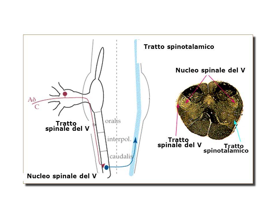 Tratto spinotalamico Tratto spinotalamico Tratto spinale del V Tratto spinale del V Nucleo spinale del V